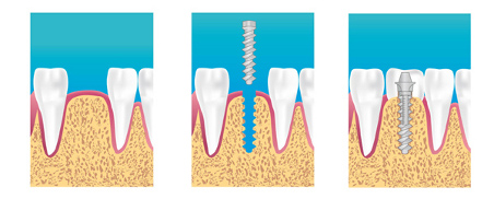 Implants dentaire Courbevoie Levallois